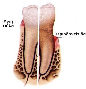Περιοδοντίτιδα