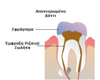 Απονευρωμένο δόντι