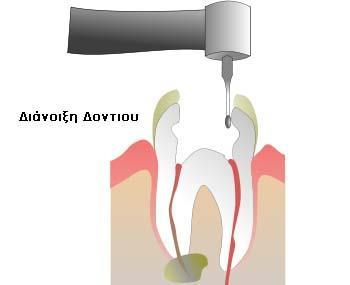 Διάνοιξη δοντιού