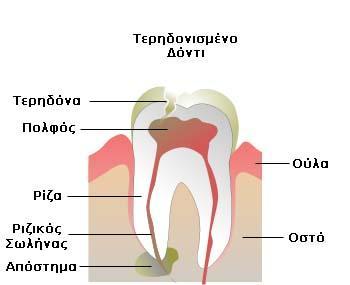Τερηδονισμένο δόντι